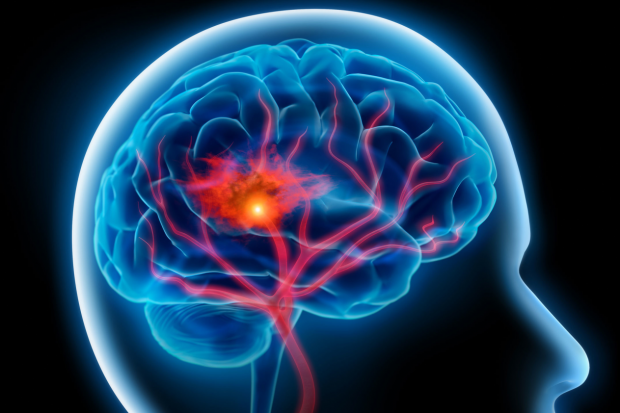 stroke | Longevity LIVE