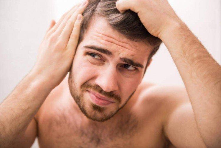 hair loss | longevity live