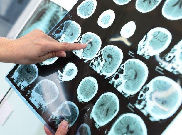 epilepsy   Longevity LIVE