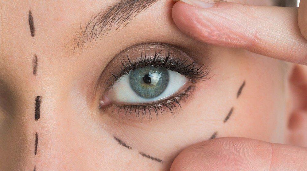 eye lift| longevity live