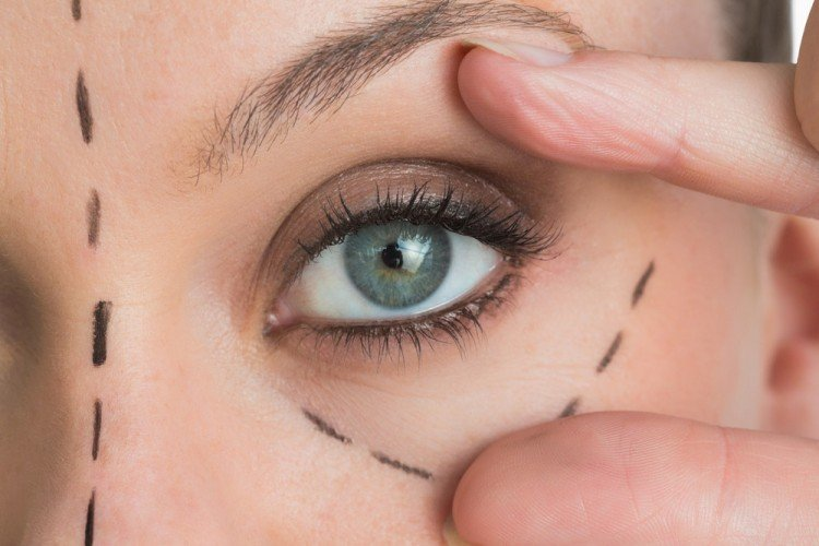 eye bags | Longevity LIVE