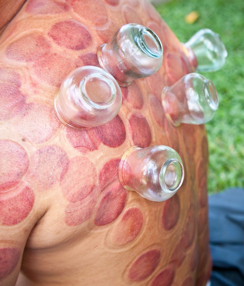 cupping| longevity live