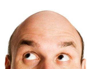 baldness | Longevity LIVE