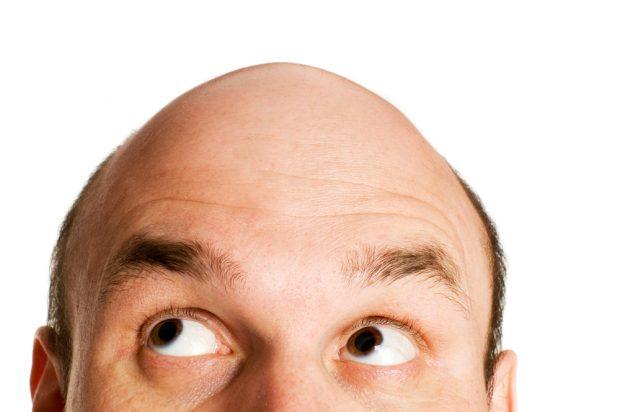 baldness   Longevity LIVE