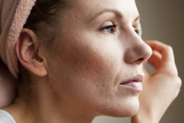 acne | Longevity Live