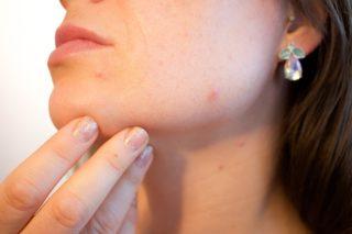acne types | Longevity LIVE