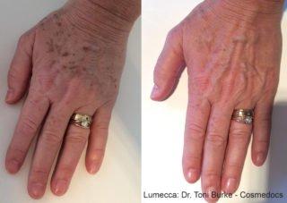treatment | Longevity LIVE