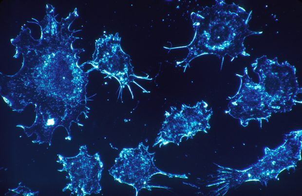 cancer cells | Longevity LIVE