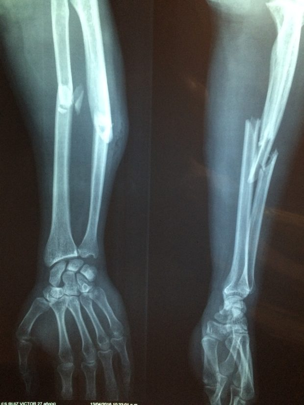 bone fracture | Longevity LIVE