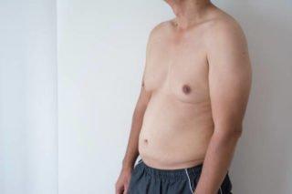 gynecomastia, manboobs [longevity live]