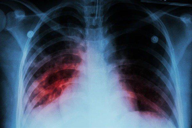 Tuberculosis study