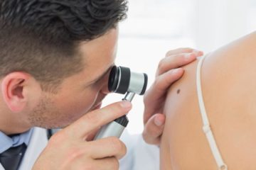 skin cancer | Longevity LIVE
