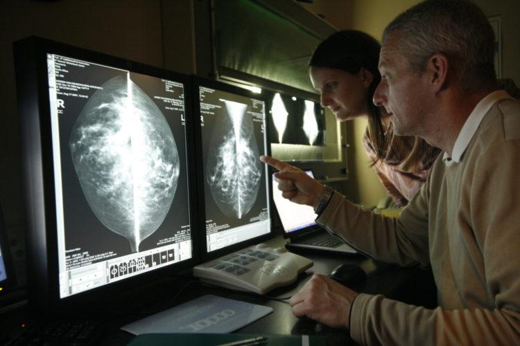 breast implants | Longevity LIVE